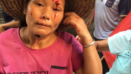 A Wukan villager was injured on her forehead as locals attempted to dodge police's purge in the remote fishing village. SCMP Pictures (Handout)